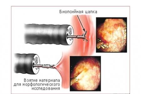 Биопсия при гастроскопии