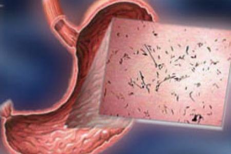 Эритематозный гастрит