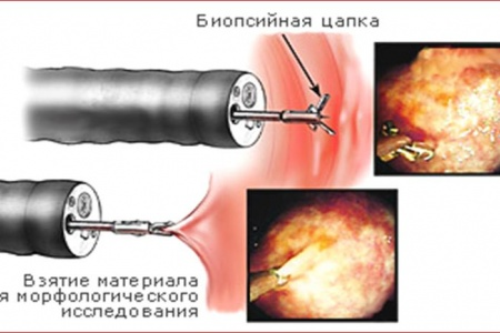 Гастроэндоскопия