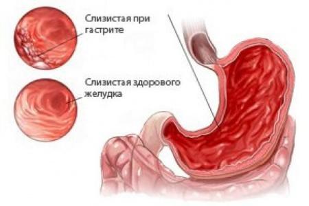 Симптомы гастрита у взрослых