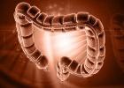 биопсия кишечника