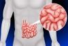мальабсорбция кишечника