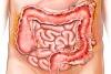 абсцесс кишечника