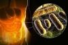 бактерии в тонком кишечнике